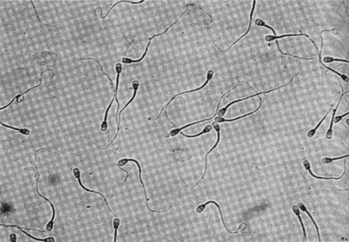 У кастрированного кобеля сперматозоиды в моче