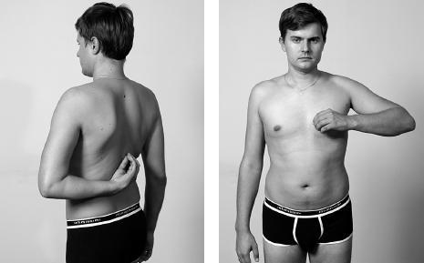 Боль в плечевом суставе - причины возникновения характер методы лечения